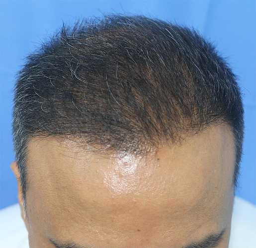 Hair%20Transplant%20Result%20-%20After%20Picture%20-Dr%20As%20Clinic%20%20R162%20(3)