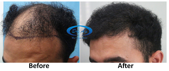 Hair Transplant Result Dr As Clinic  A214 (4)