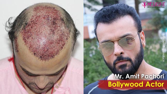 celebrity-hair-transplant-jaipur