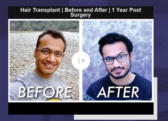 Before and After transformation.PNG