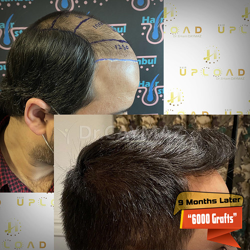 6000-grafts-9-months-later-5
