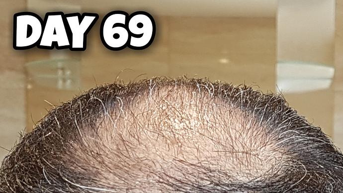 Crown%2069