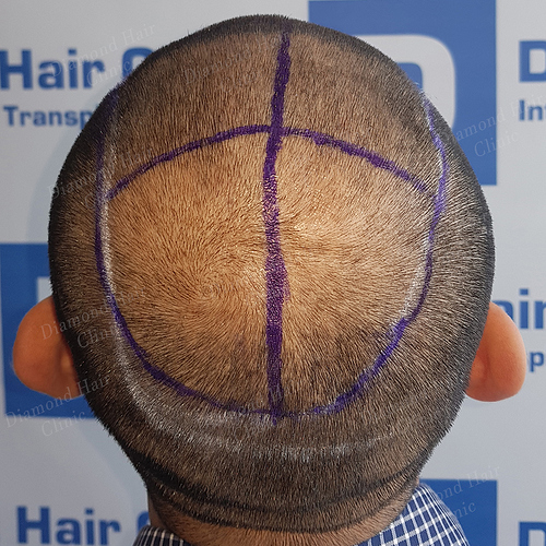 hair transplant turkey Istanbul fue DHI cost package reviews Dr.Mehmet Demircioglu Diamond Hair Clinic best hair transplant in _11