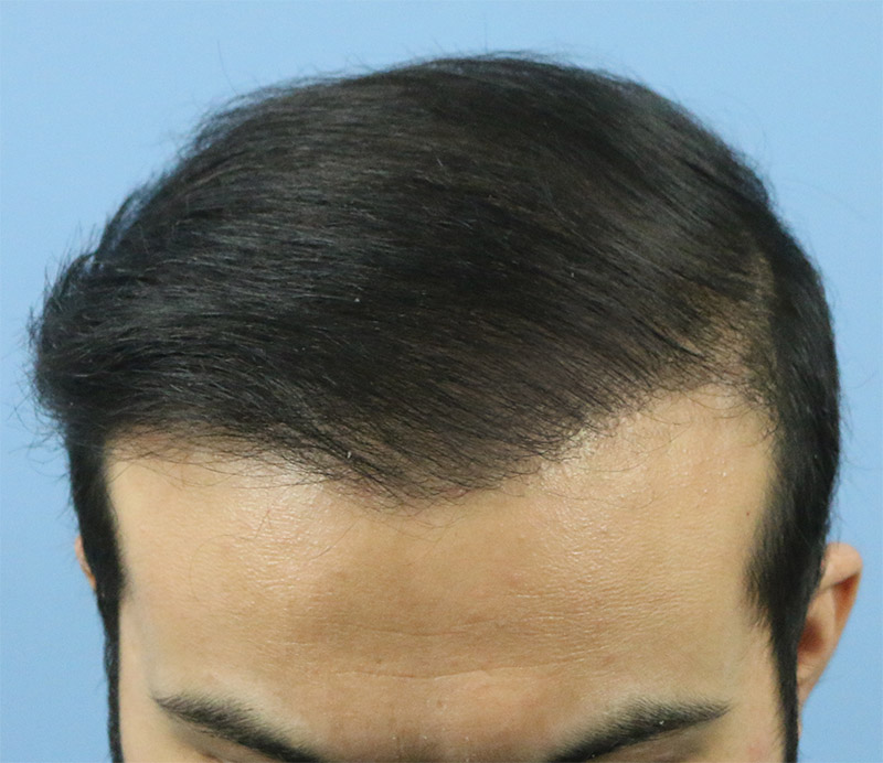 Hair Transplant Result A213 DR as clinic 2