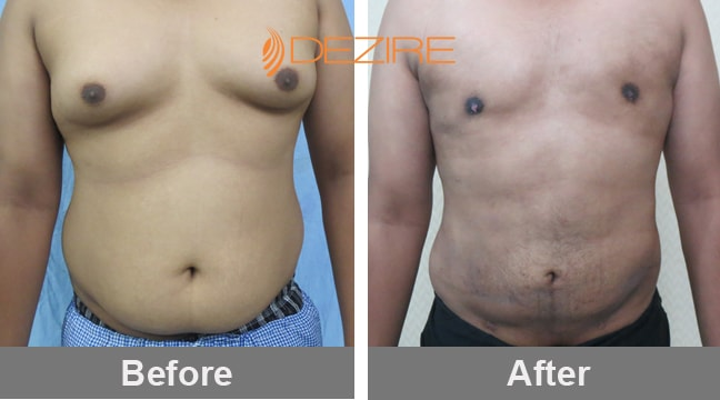 best-liposuction-surgeons-in- vaser lipo