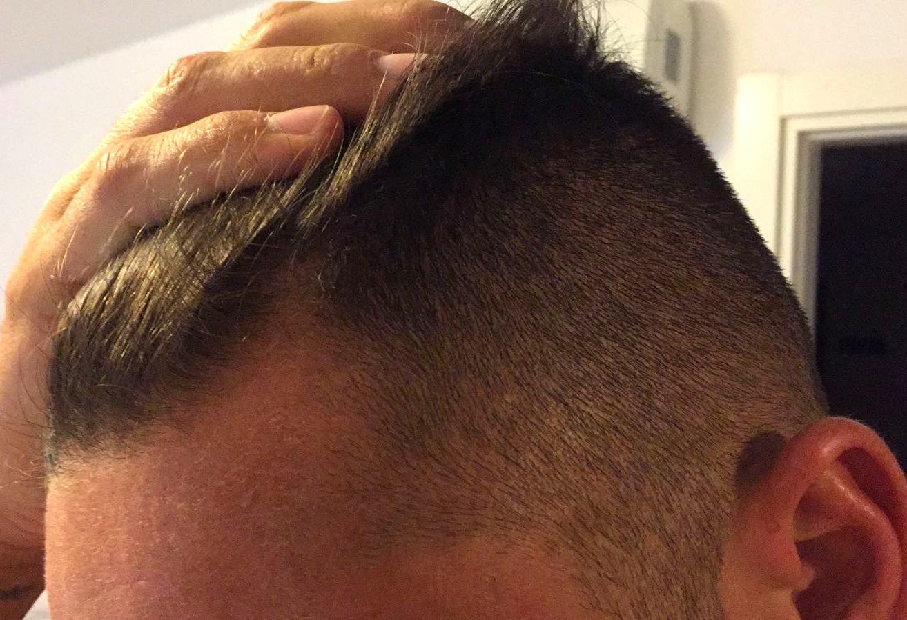 Proscar Medication Hair Loss