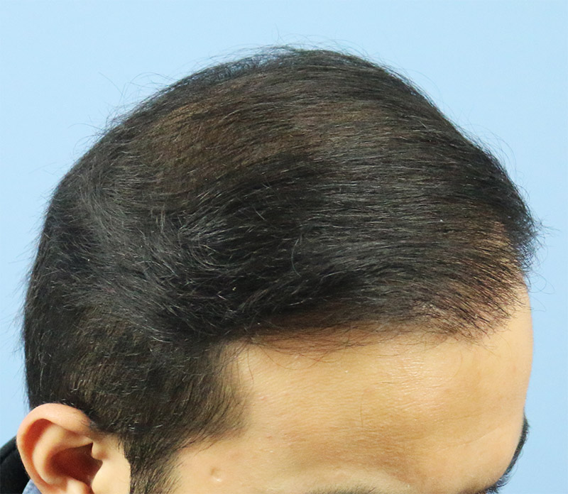 Hair Transplant Result A213 DR as clinic 3