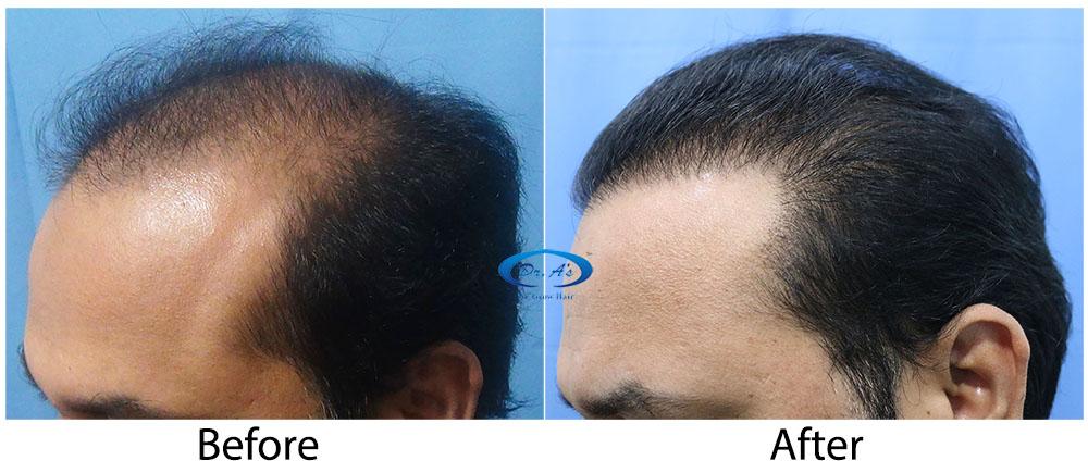 Hair-Transplant-Result-A224-drasclinic (5)