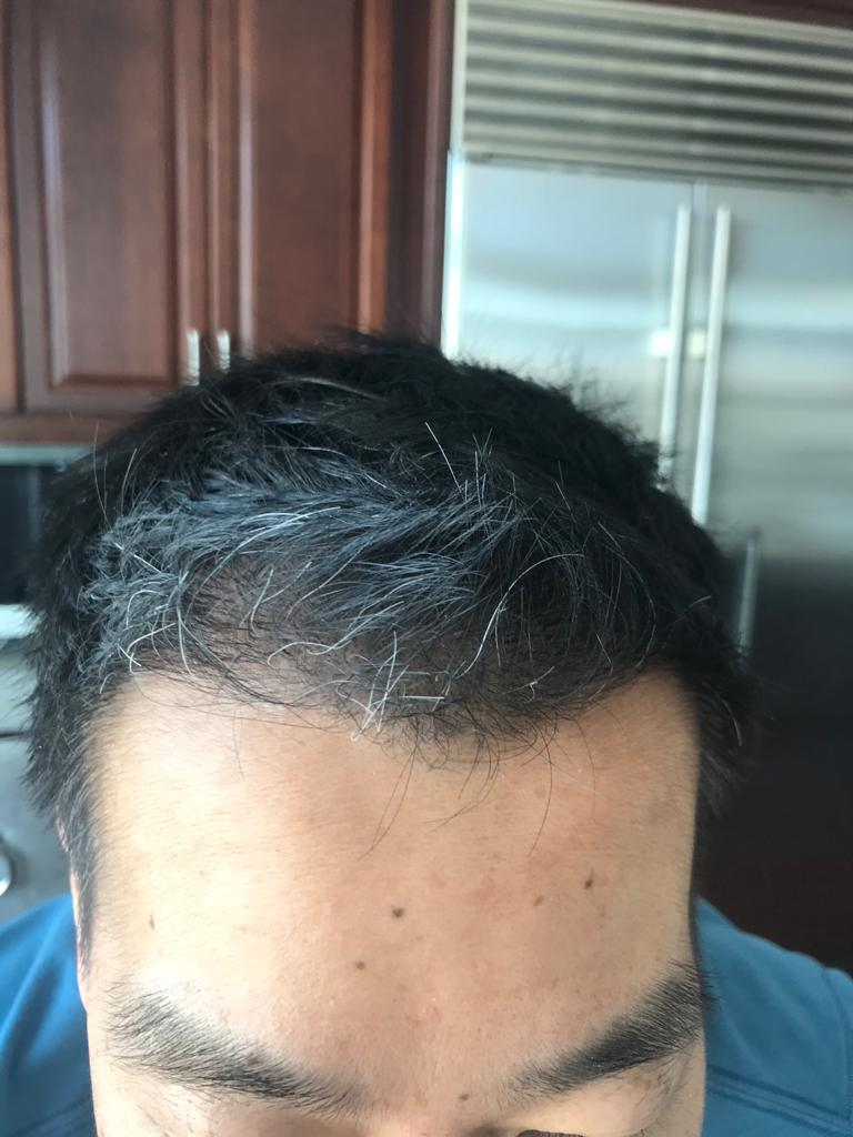 Frontal Part 7 months after