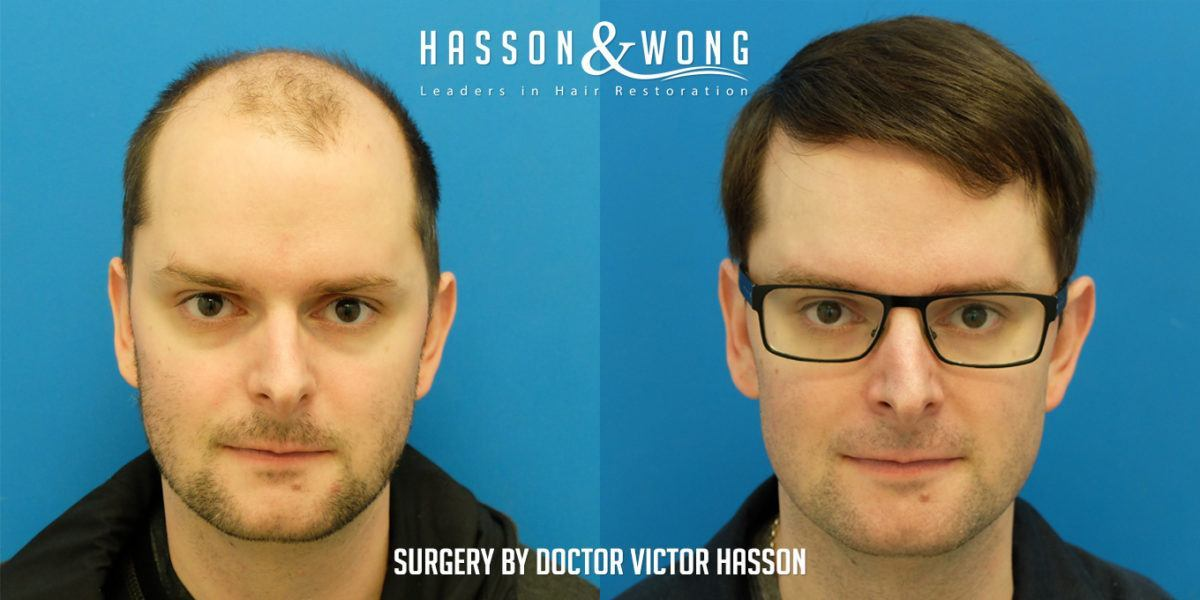 Hasson Wong Hair Transplant Vancouver Strip 7264 Grafts Norwood
