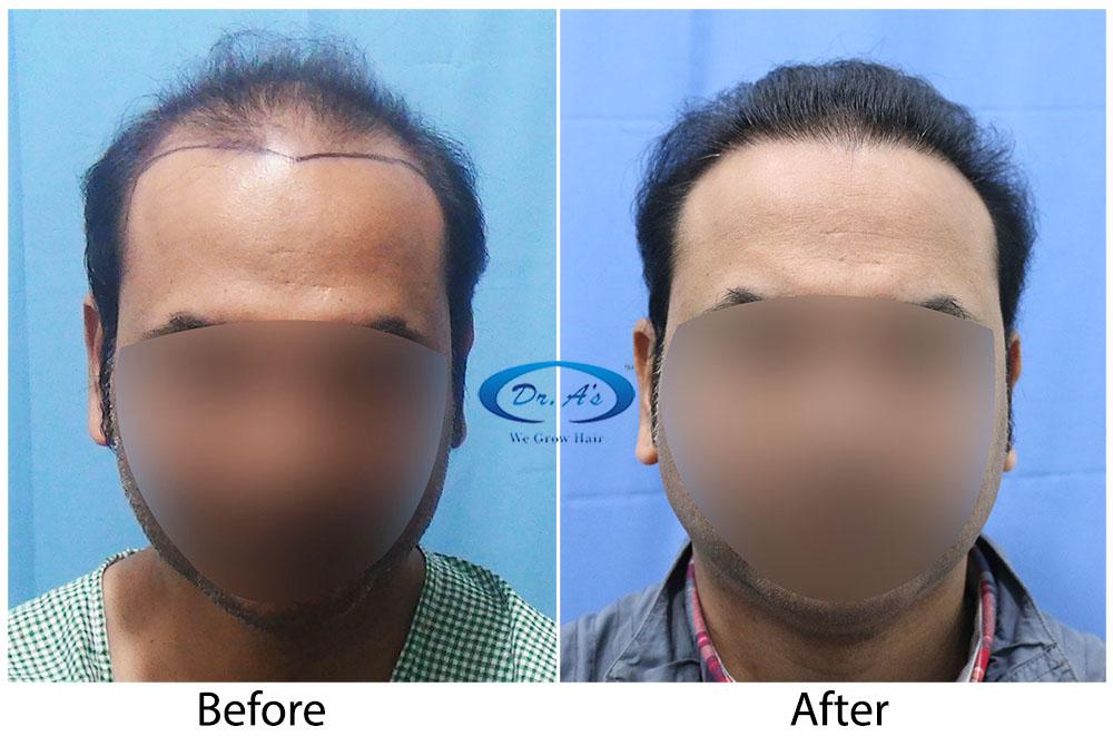 Hair-Transplant-Result-A224-drasclinic (1)