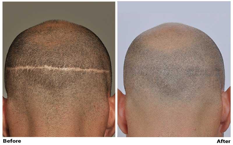 Hair transplant scar shaved