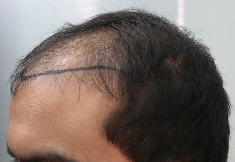 Hair Transplant Result A213 DR as clinic 4