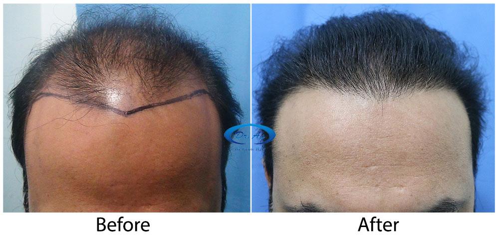 Hair-Transplant-Result-A224-drasclinic (3)