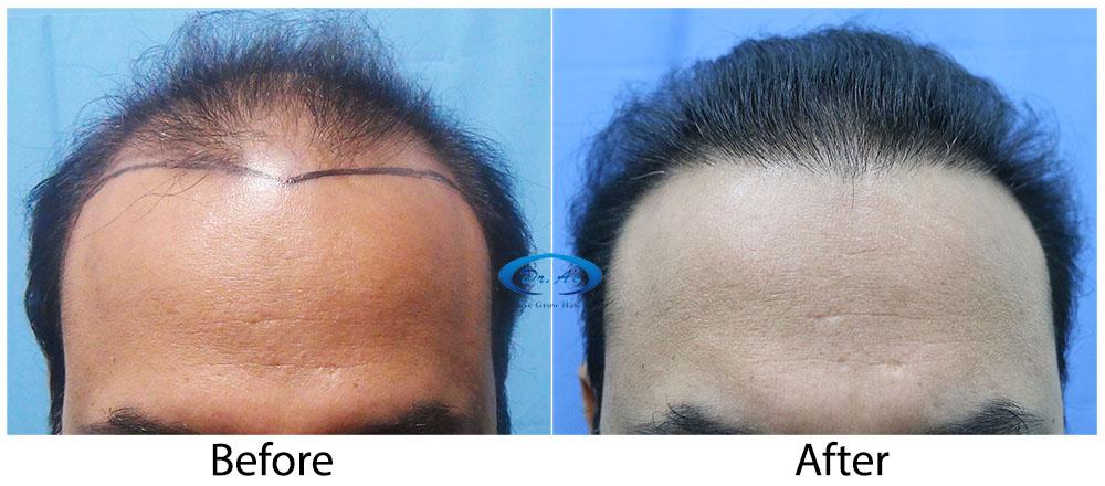 Hair-Transplant-Result-A224-drasclinic (2)