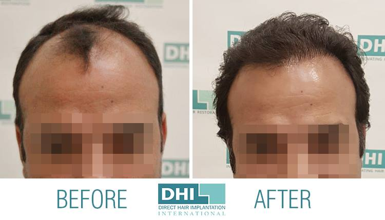 naatural hairline - DHI