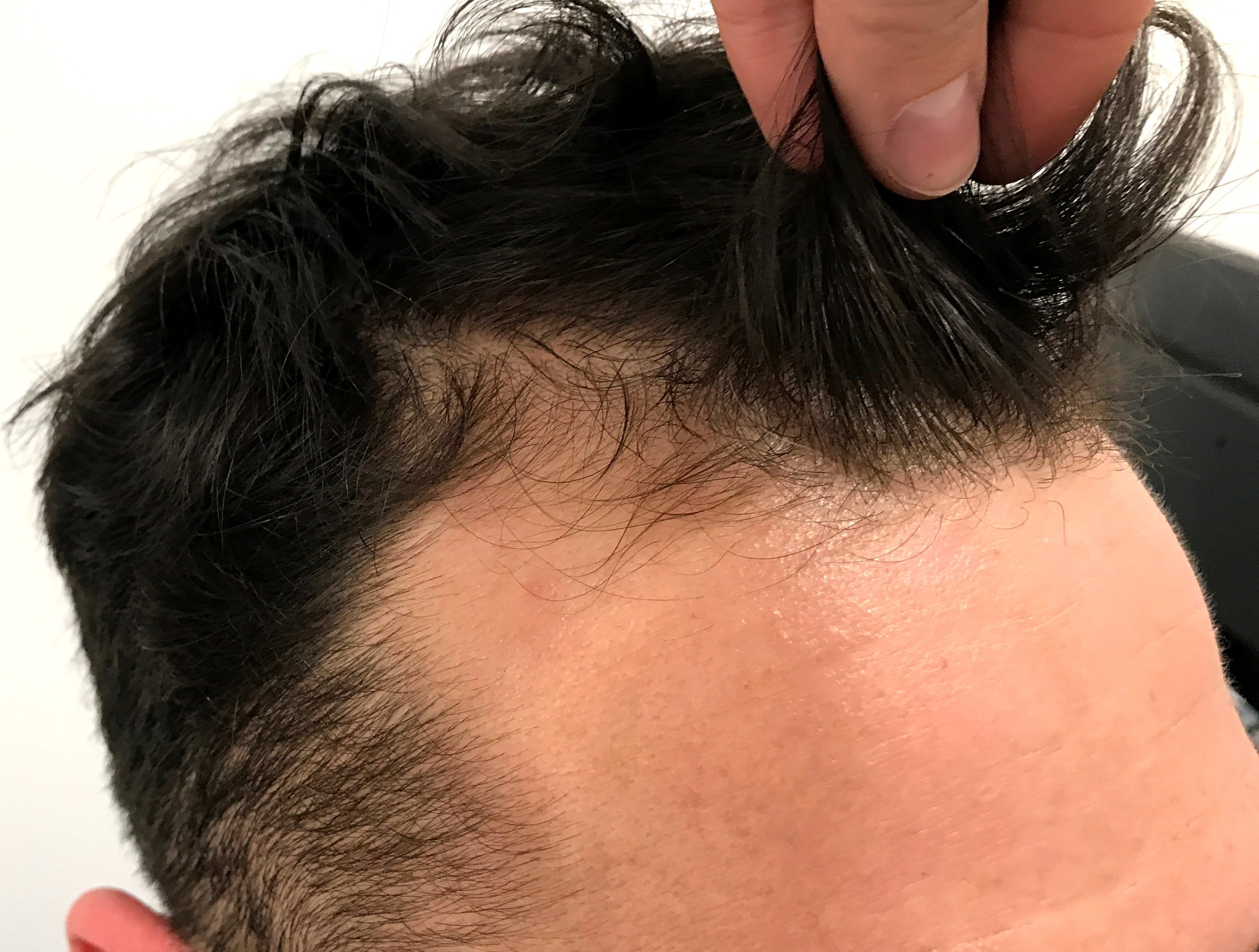 American Hair Loss Association - Hair Loss Treatment