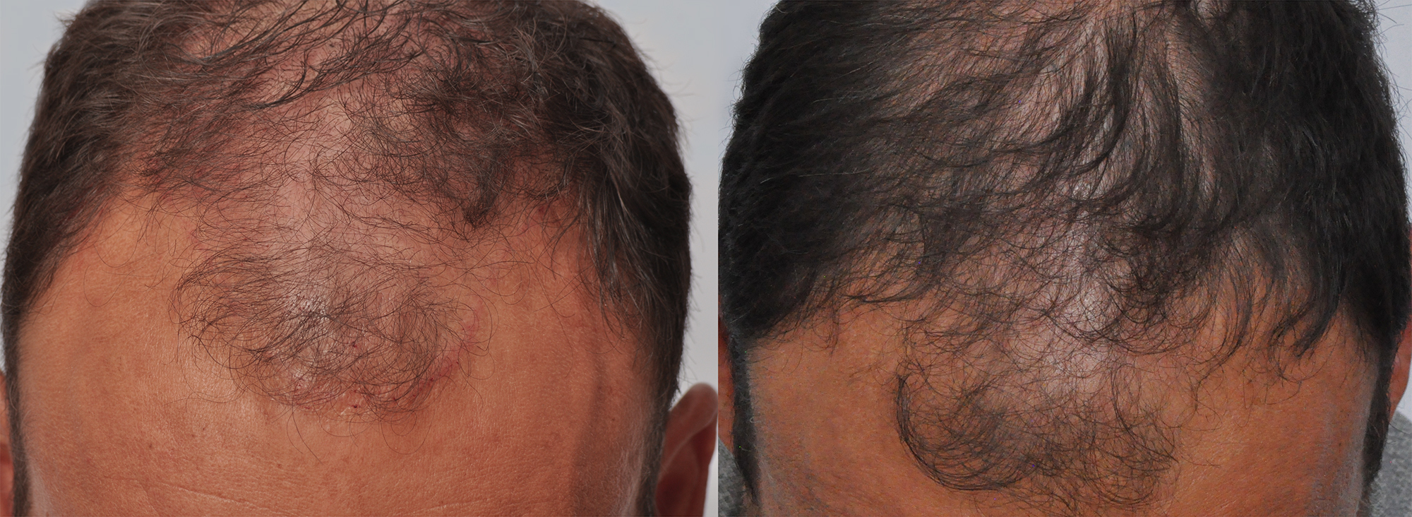 Dr  Cole Sonicated Platelet Rich Plasma PRP hair treatment result