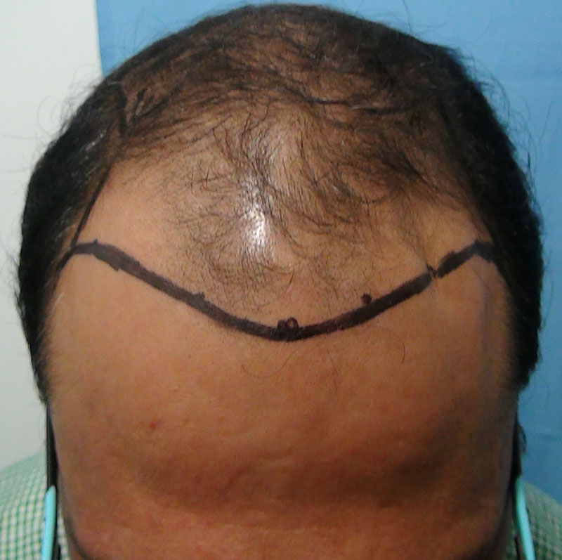 Hair%20Transplant%20Result%20-%20Before%20Picture%20-Dr%20As%20Clinic%20%20R159%20(2)