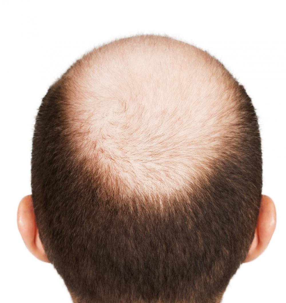 What-is-Male-Pattern-Baldness